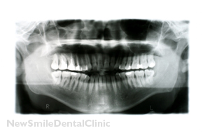 X Ray of Mouth