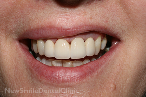 New Smile Dental Clinic Crowns And Bridges Sligo