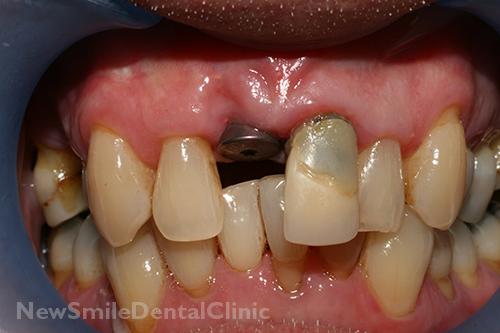 New Smile Dental Clinic Dental Implants Sligo